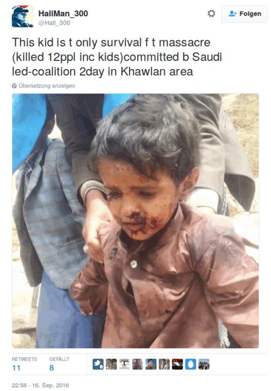 jemen_kid_survived594